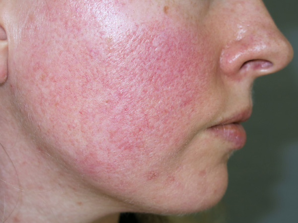ROSACEA contraindications In beauty therapy