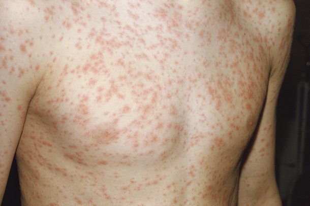 RUBELLA contraindications In beauty therapy