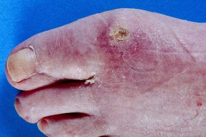 SCLERODERMA contraindications In beauty therapy