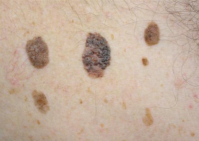 SEBORRHEIC KERATOSIS contraindications In beauty therapy