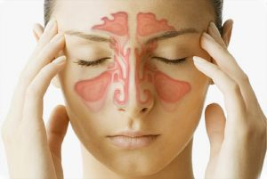 SINUSITIS contraindications In beauty therapy