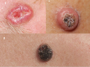 SKIN CANCER contraindications In beauty therapy