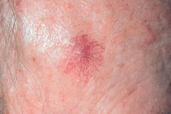 SPIDER ANGIOMA contraindications In beauty therapy