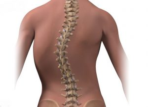 SPINAL CURVATURE contraindications In beauty therapy