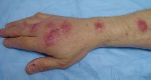 SPOROTRICHOSIS contraindications In beauty therapy