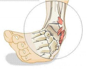 SPRAINS contraindications In beauty therapy