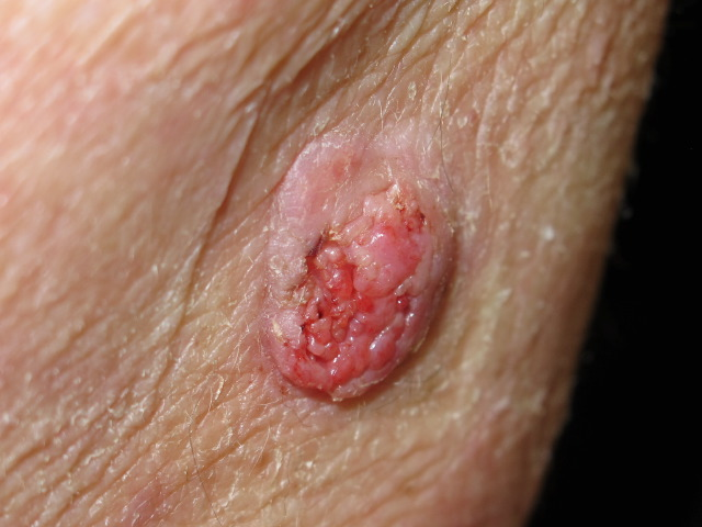 SQUAMOUS CELL CARCINOMA (SCC) contraindications In beauty therapy