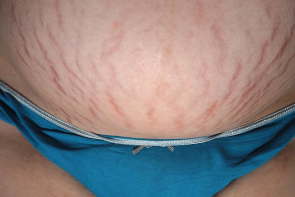 STRETCH MARKS (STRIAE) contraindications In beauty therapy