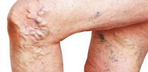 THROMBOSIS (DEEP VEIN THROMBOSIS, DVT) contraindications In beauty therapy