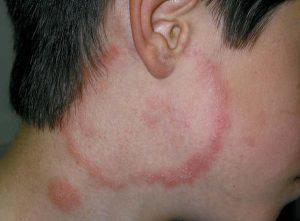 TINEA BARBAE (TINEA FACIEI) contraindications In beauty therapy