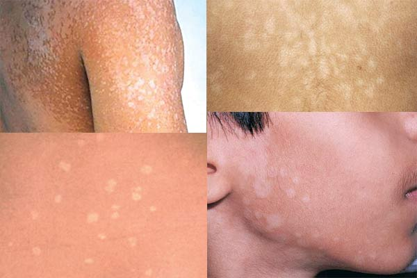 TINEA VERSICOLOR (PITYRIASIS VERSICOLOR) contraindications In beauty therapy
