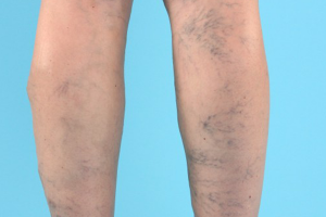 VARICOSE VEINS contraindications In beauty therapy