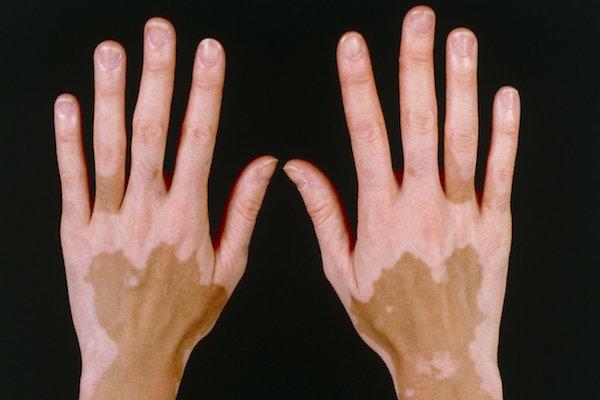 VITILIGO contraindications In beauty therapy