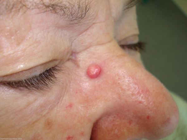 ANGIOFIBROMA contraindications In beauty therapy